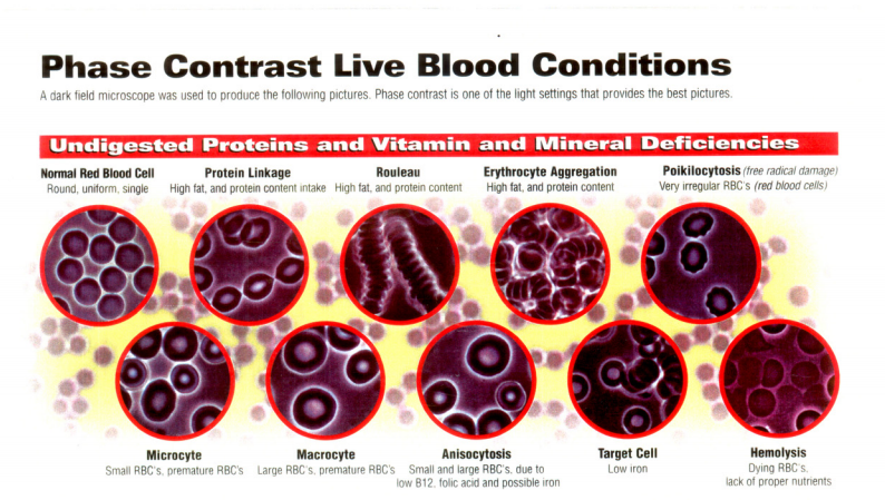 Live blood analysis Billings Montana